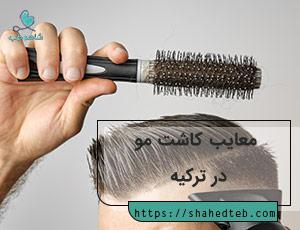 معایب کاشت مو در ترکیه